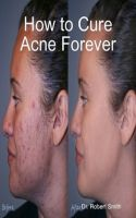 Cover for 'How to Cure Acne Forever'