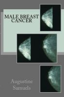 Cover for 'Male Breast Cancer'